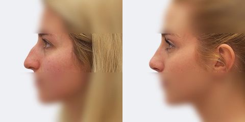2 plasticka operace nosu bok pred