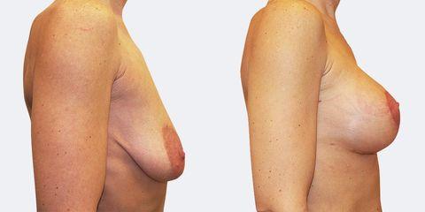 gg zvetseni prsou vc modelace bok2 pred