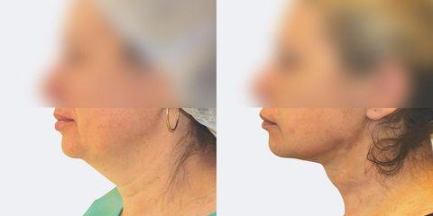 2 laser lipo bok pred