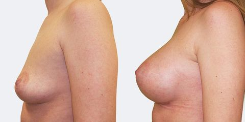 3 pouziti anatomickych implantatu bok pred