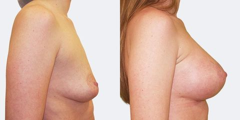 3 pouziti anatomickych implantatu bok2 pred