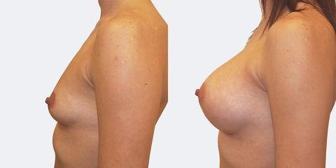 1 pouziti anatomickych implantatu bok pred