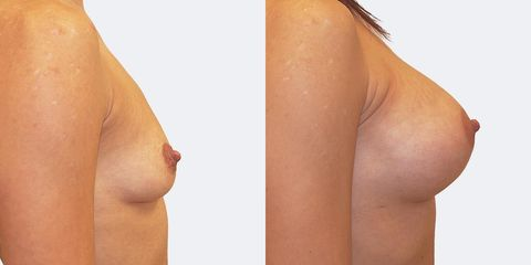 1 pouziti anatomickych implantatu bok2 pred