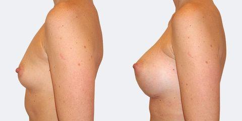 2 pouziti anatomickych implantatu bok pred
