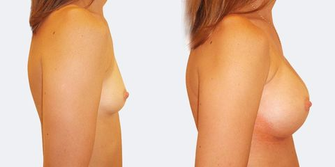 12 plasticka chirurgie prirozene zvetseni bok2 pred