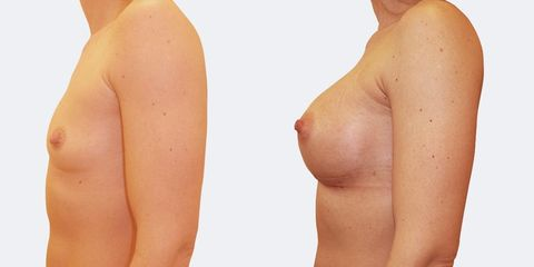 6 plasticka chirurgie prirozene zvetseni bok pred
