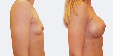 6 plasticka chirurgie prirozene zvetseni bok2 pred