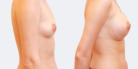 13 plasticka chirurgie prirozene zvetseni bok2 pred