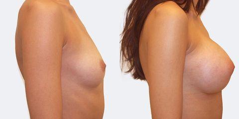 6 pouziti kulatych implantatu bok2 pred