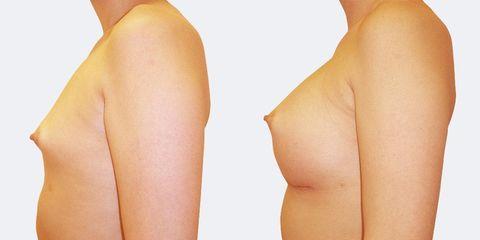 4 plasticka chirurgie vyrazne zvetseni bok pred