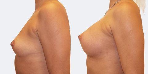 10 pouziti kulatych implantatu bok pred