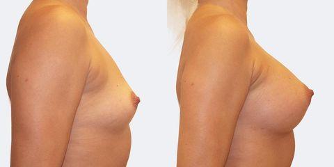 10 pouziti kulatych implantatu bok2 pred