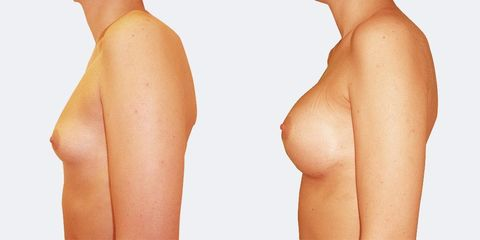 7 plasticka chirurgie prirozene zvetseni bok pred