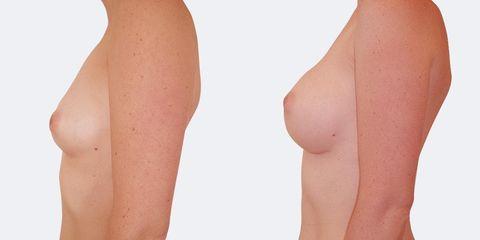 10 plasticka chirurgie prirozene zvetseni bok pred