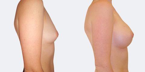 10 plasticka chirurgie prirozene zvetseni bok2 pred