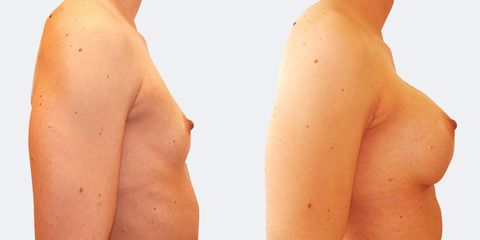 5 plasticka chirurgie prirozene zvetseni bok2 pred