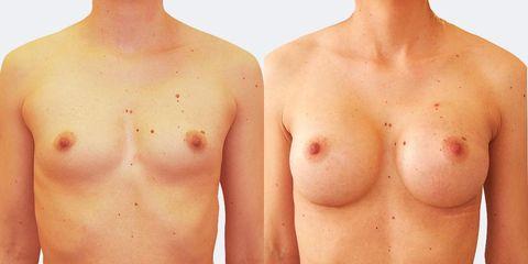 5 plasticka chirurgie prirozene zvetseni zepredu pred