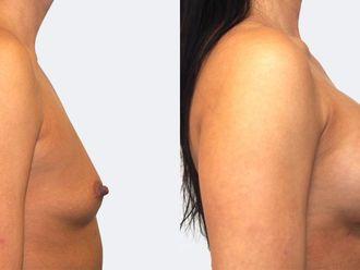 Zvětšení prsou - 786908