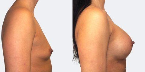 Zvětšení prsou - Prim. MUDr. Petr Pachman - MEDICOM Clinic