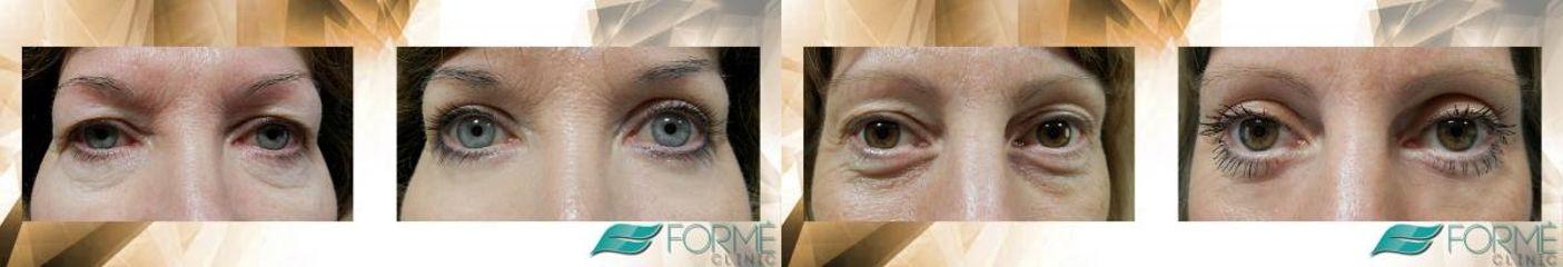 operace očních víček (2) logo