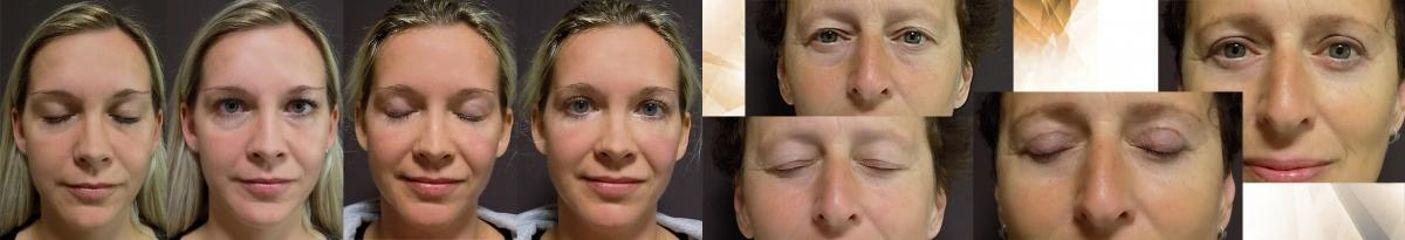 oční víčka horní dolní 2