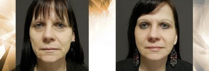 Face and neck lift + HV