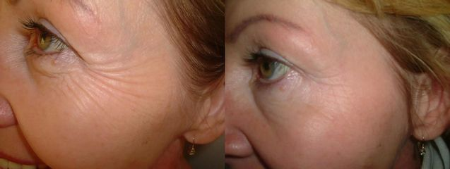 Odstranění vrásek botoxem