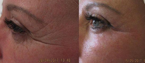 Odstranění postranních vrásek u oka