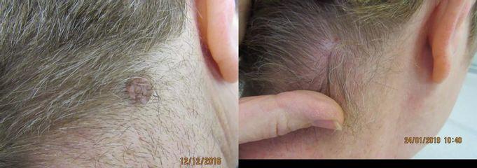 Odstranění kožních výrůstků