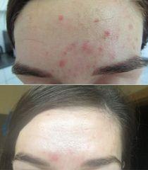 Laserová léčba akné - MUDr. Drahomíra Kotlářová