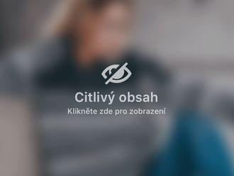 Liposukce - 695560