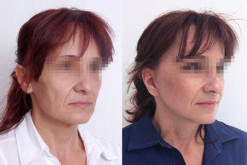 facelifting v lokální anestezii metodou quicklift_paní saša, 52 let