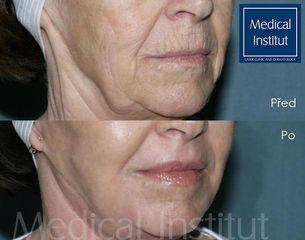 Zvětšení rtů - Medical Institut Care s.r.o.
