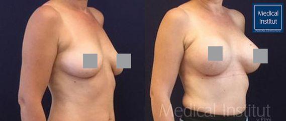 Zvětšení prsou - Medical Institut Care s.r.o.