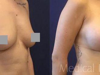 Zmenšení prsou - 742239