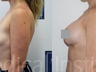 Zmenšení prsou - 742240