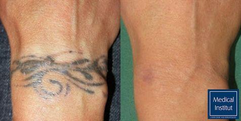 Odstranění tetování - Medical Institut Care s.r.o.