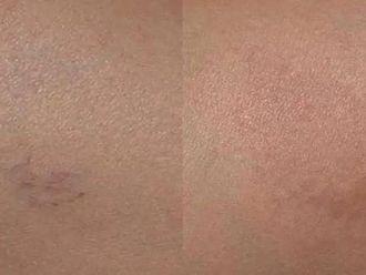 Laserová dermatologie - 724819