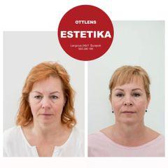 Operace horních očních víček (Blefaroplastika) u ženy