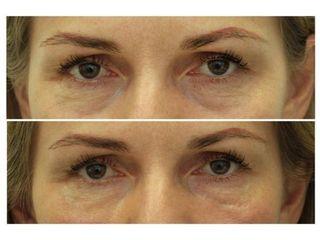 Žena, 49 let, korekce kruhů pod očima kyselinou hyaluronovou