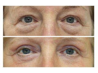 Operace očních víček -(Blefaroplastika)