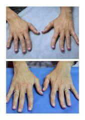 Machálková Marcela ruce