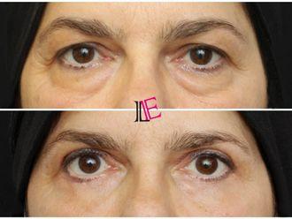 Operace očních víček - 798011