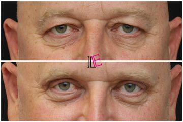 Operace očních víček - MUDr. Michaela Vasilčo Hustá