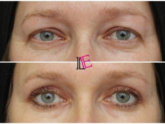 Operace očních víček - 798014