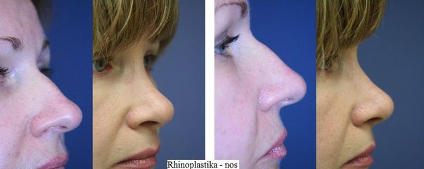 rhinoplastika nos