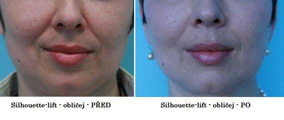 Facelift Silhouette Lift