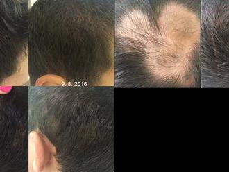Vypadávání vlasů - 734598