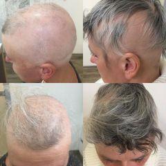 Vypadání vlasů
