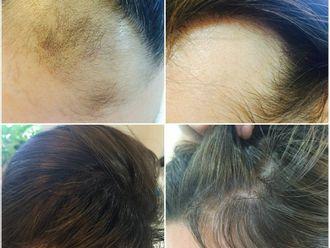 Vypadávání vlasů - 734602